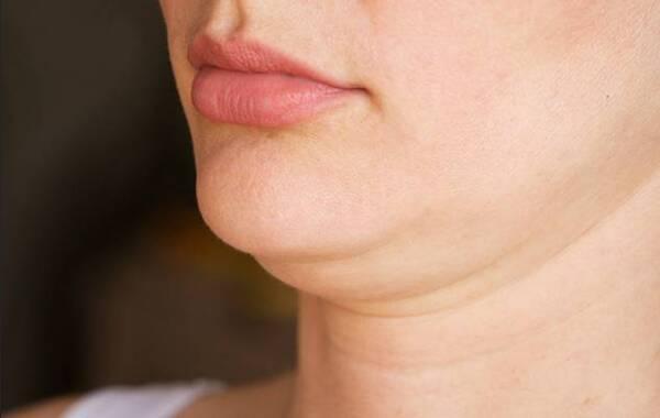 Nọng cằm gây hại cho sức khỏe